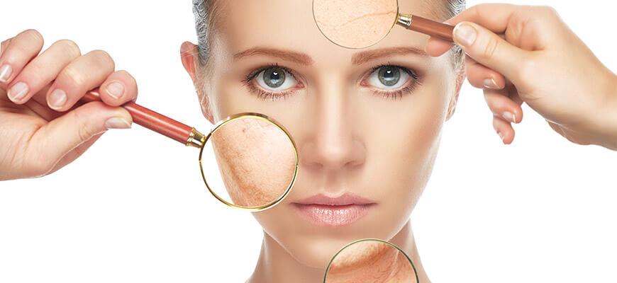 IPL Skin Rejuventation